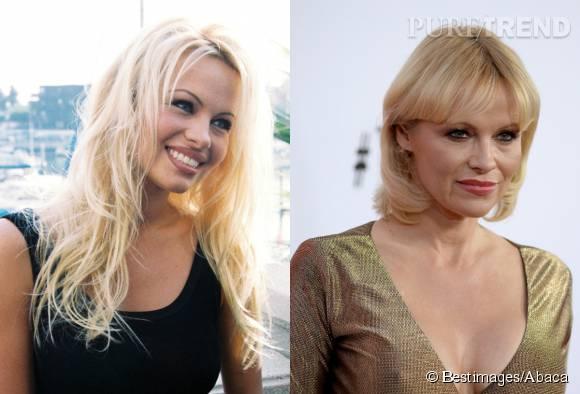 Pamela Anderson avant et après la chirurgie.