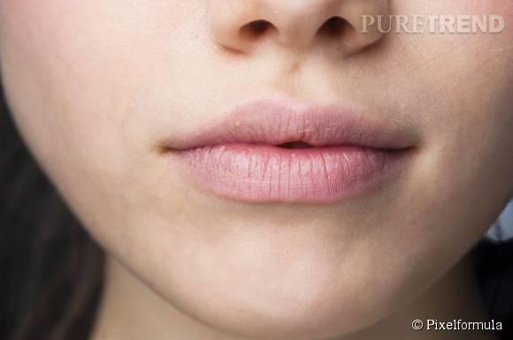 Les conseils pour prendre soin de vos lèvres.