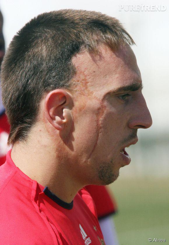 Franck Ribéry a eu un grave accident de voiture lorsqu'il était enfant, mais cela fait longtemps qu'il a accepté cette partie de lui même.