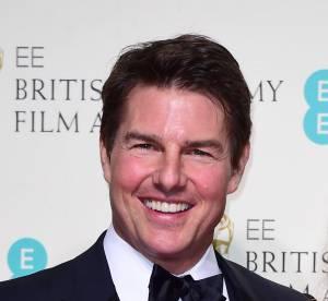 Tom Cruise , rouge et gonflé aux BAFTA : la faute aux injections ?