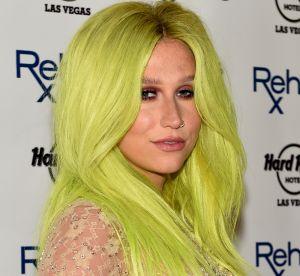 Ces 5 looks qui font que Kesha est Kesha (et pas une fashionista)