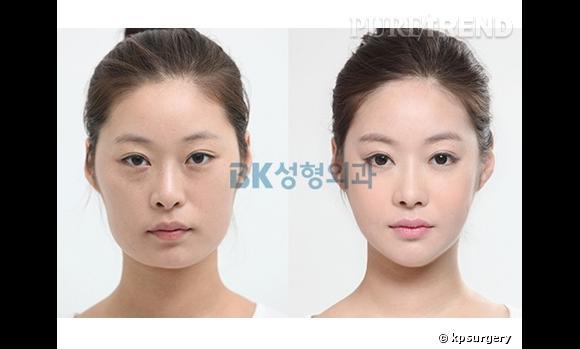 Les métamorphoses des Coréennes, accros à la chirurgie.