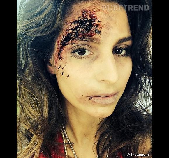 Laury Thilleman révélait les coulisses du tournage d'Alice Nevers sur Instagram, montrant son visage tuméfié.