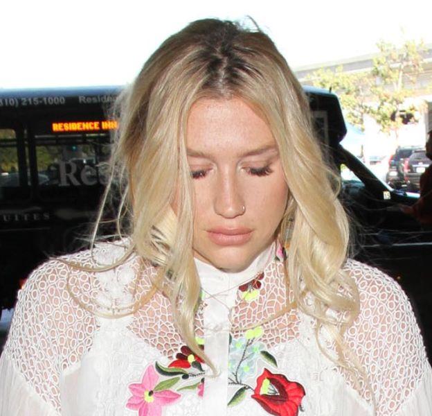 Kesha est méconnaissable, elle a une bouche qui a doublé de volume depuis quelques jours !
