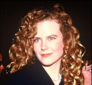Nicole Kidman : son visage a bien changé...