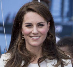 Kate Middleton : la Duchesse adepte de la chirurgie esthétique ?