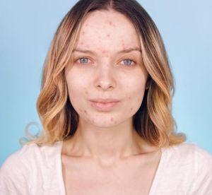 Montrer son acné sans tabou : la nouvelle tendance sur Instagram