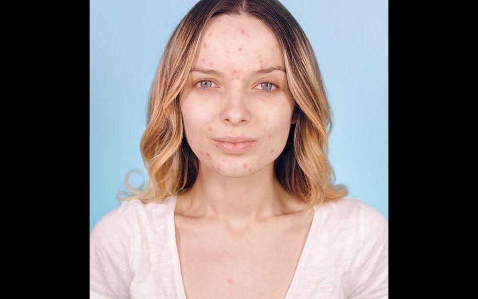 Des jeunes femmes ont décidé de montrer leur acné sans honte et de faire passer un message positif sur Instagram.