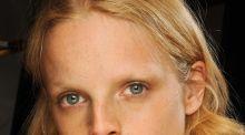 Puretrend a testé le soin visage Dermo Peeling (qui pique mais qui rend belle)