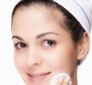 Traitement acné : les solutions pour une belle peau