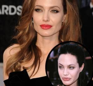 Angelina Jolie, Madonna... c'était mieux avant ou après la chirurgie?