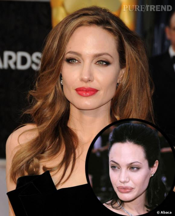 Angelina Jolie, c'était mieux avant ou après la chirurgie ?
