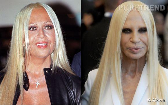 Donatella Versace, avant et après la chirurgie.