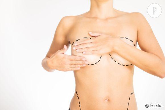 Nouvelles techniques et modèles populaires : on fait le point sur les demandes des patients en chirurgie esthétique !