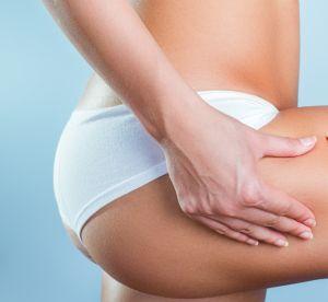 3 techniques pour combattre efficacement la cellulite