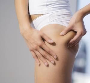 Cellulite : causes, types, solutions... Tout ce qu'on ne vous dit pas