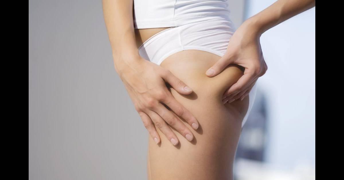 Cellulite causes types solutions tout ce qu 39 on ne vous dit pas - Qu est ce qu un balayage ...