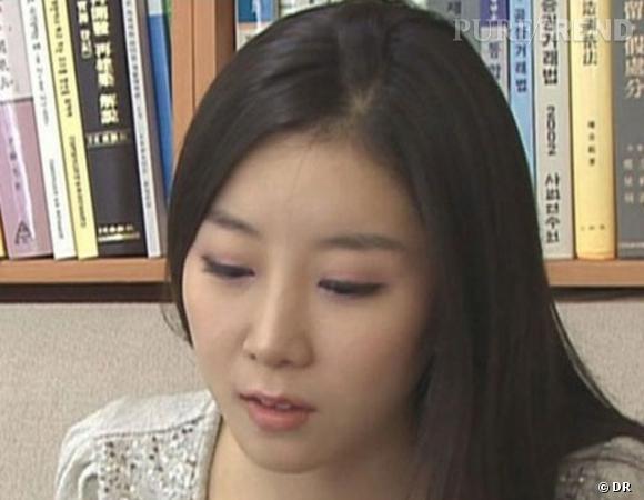 Won Jayhun avant son opération du menton.