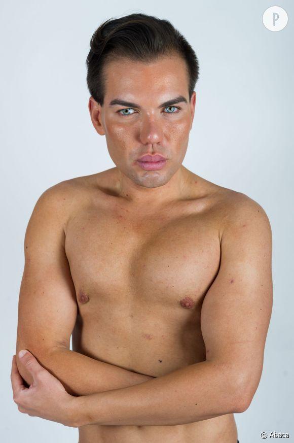 Rodrigo Alves a eu recours à une trentaine d'opérations de chirurgie esthétique pour modifier son apparence.