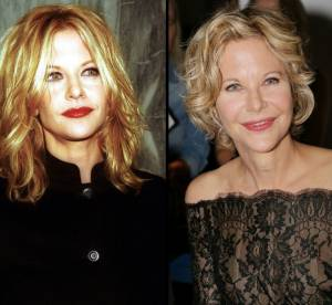 Meg Ryan : la transformation en images d'une accro au Botox