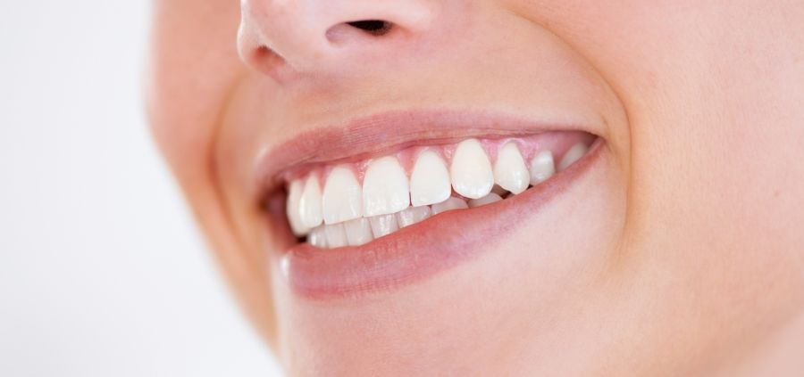 3 trucs efficaces pour blanchir les dents