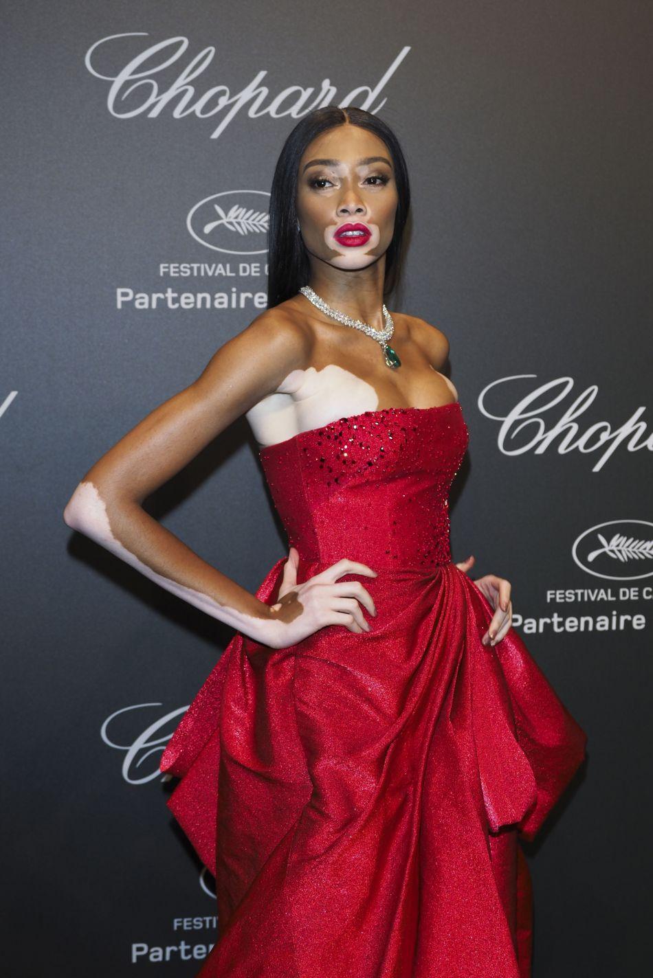 Winnie Harlow a fait une sublime apparition à la soirée Chopard à Cannes 2017.