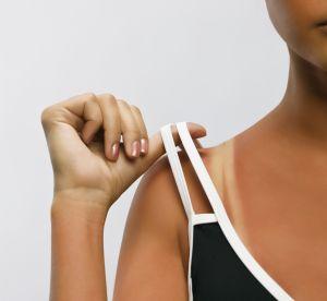Le traumatisme de la marque de bronzage peut-il gâcher l'été ?