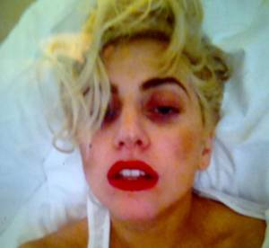 Lady Gaga : la photo de son oeil au beurre noir !