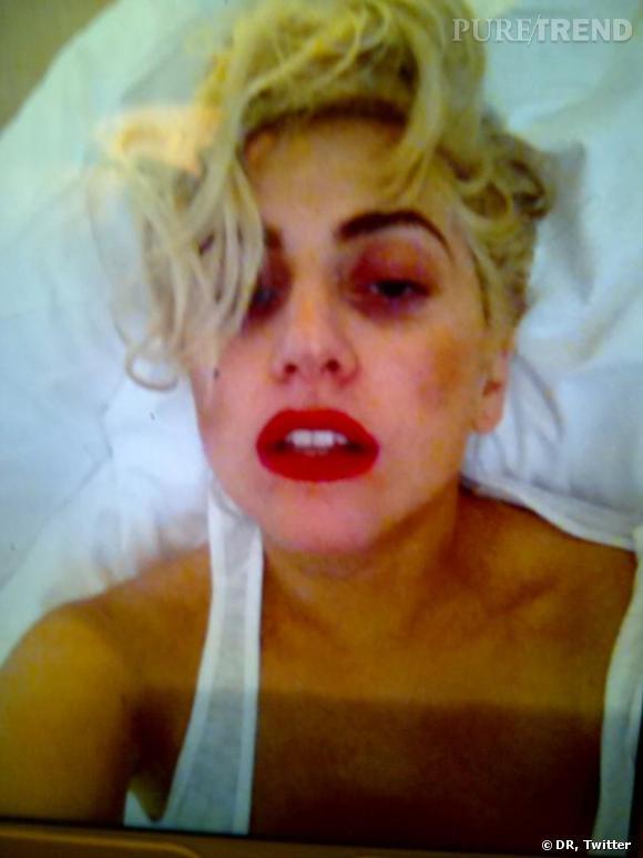 Lady Gaga twitte une photo de son oeil au beurre noir, encore en cours de cicatrisation