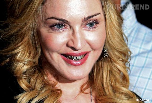 Madonna, plus effrayante que jamais avec son sourire habillé de grillz.