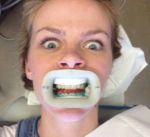 Brooklyn Decker continue les grimaces, jusque chez le dentiste.