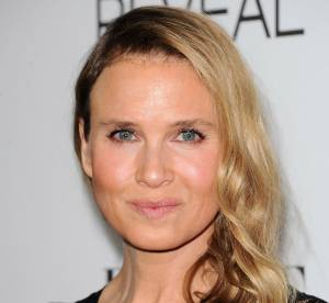 Renée Zellweger, son visage transformé, abus de chirurgie ? Elle répond !