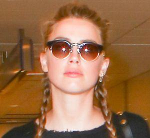 Amber Heard : l'actrice affiche un bras couvert de bleus