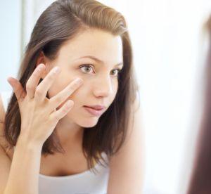Imperfections : les produits naturels pour y remédier
