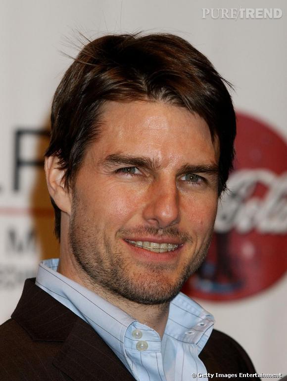 Tom Cruise a lui aussi porté un appareil dentaire.