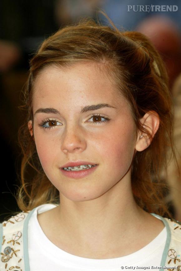 """Emma Watson est bien passée par la case """"appareil dentaire"""", comme beaucoup d'adolescents."""