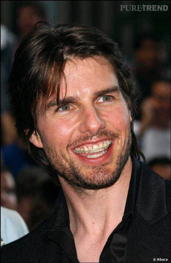 Tom Cruise aussi a connu les bienfaits du fameux appareil.