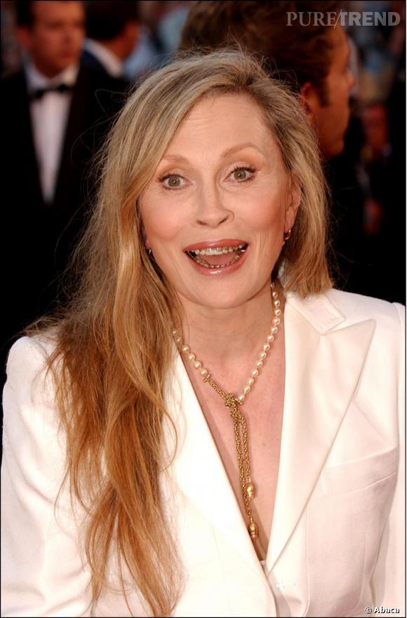 Faye Dunaway aussi est passé par l'appareil dentaire malgré son âge avancé.