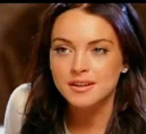 Lindsay Lohan, Katy Perry... boutons, croutes, les problemes d'acne des stars