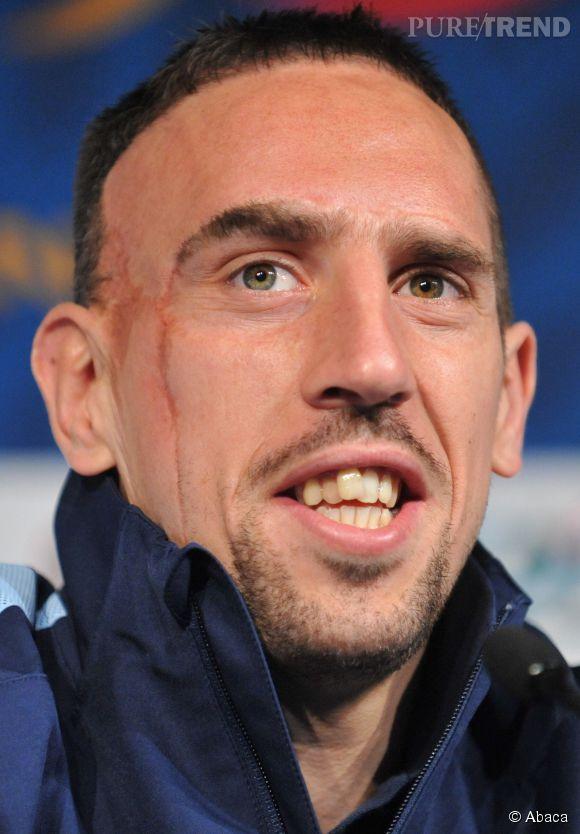 Franck Ribéry écarté du Mondial 2014 pour des problèmes de dos, il se paye plongeon et fumette à Ibiza selon des photos parues dans le Bild et dans l'Equipe.