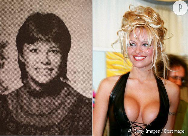 Pamela Anderson, avant et après ses faux seins.
