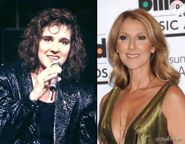 Céline Dion, avant et après la chirurgie.