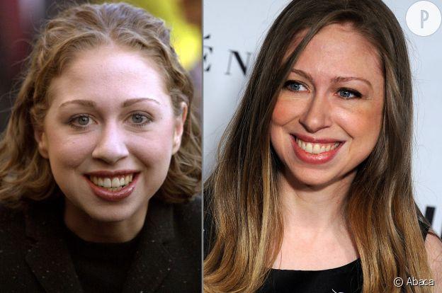 Chelsea Clinton avant et après la chirurgie.