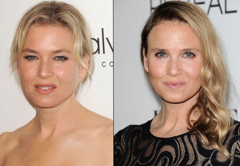 En 2014, Renée Zellweger subissait une opération de chirurgie esthétique qui changeait radicalement son regard.