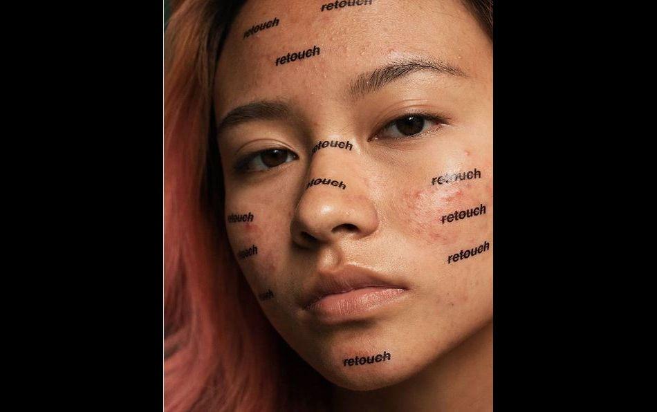 Peter DeVito, photographe américain, lance un projet pour banaliser l'acné et arrêter d'en faire un complexe.