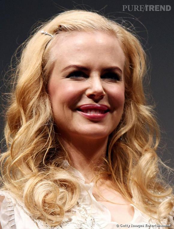 What did you expect ? Nicole Kidman victime de son addiction au botox...
