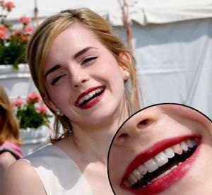 Emma Watson, Condoleezza Rice : le sourire qui fait tache