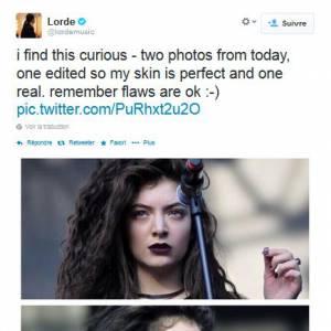 Lorde et ses problème de peaux : pas de quoi fouetter un chat ! Elle est en guerre contre photoshop !