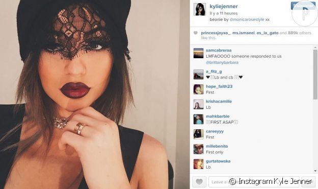 Kylie et ses lèvres bizarres