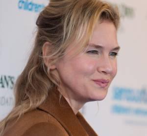 Renée Zellweger : les lèvres ultra gonflées, nouvel abus de chirurgie ?